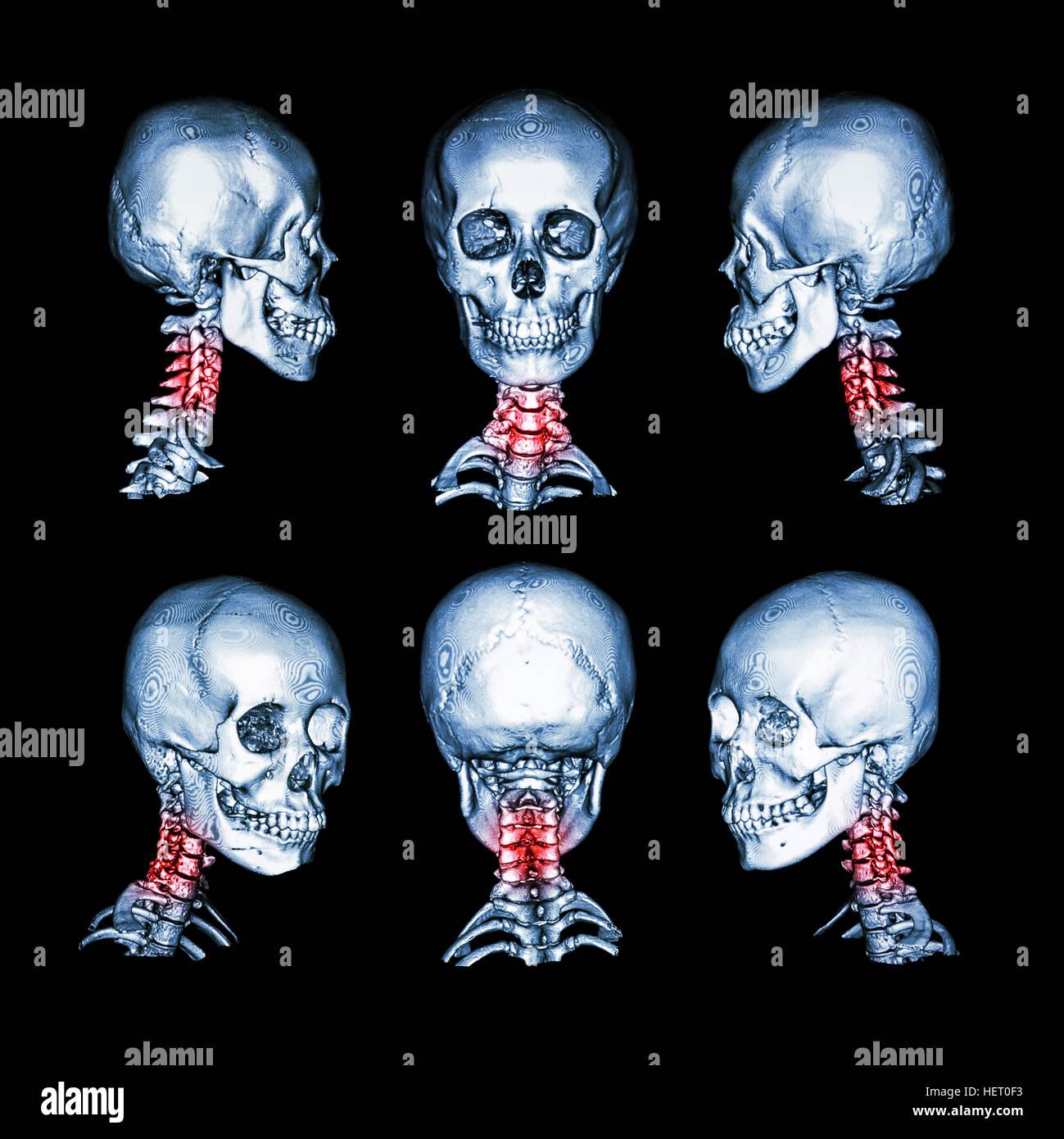 CT scan and 3D image of skull and neck . Use this image for cervical spondylosis , spondylolisthesis , spondylitis - Stock Image
