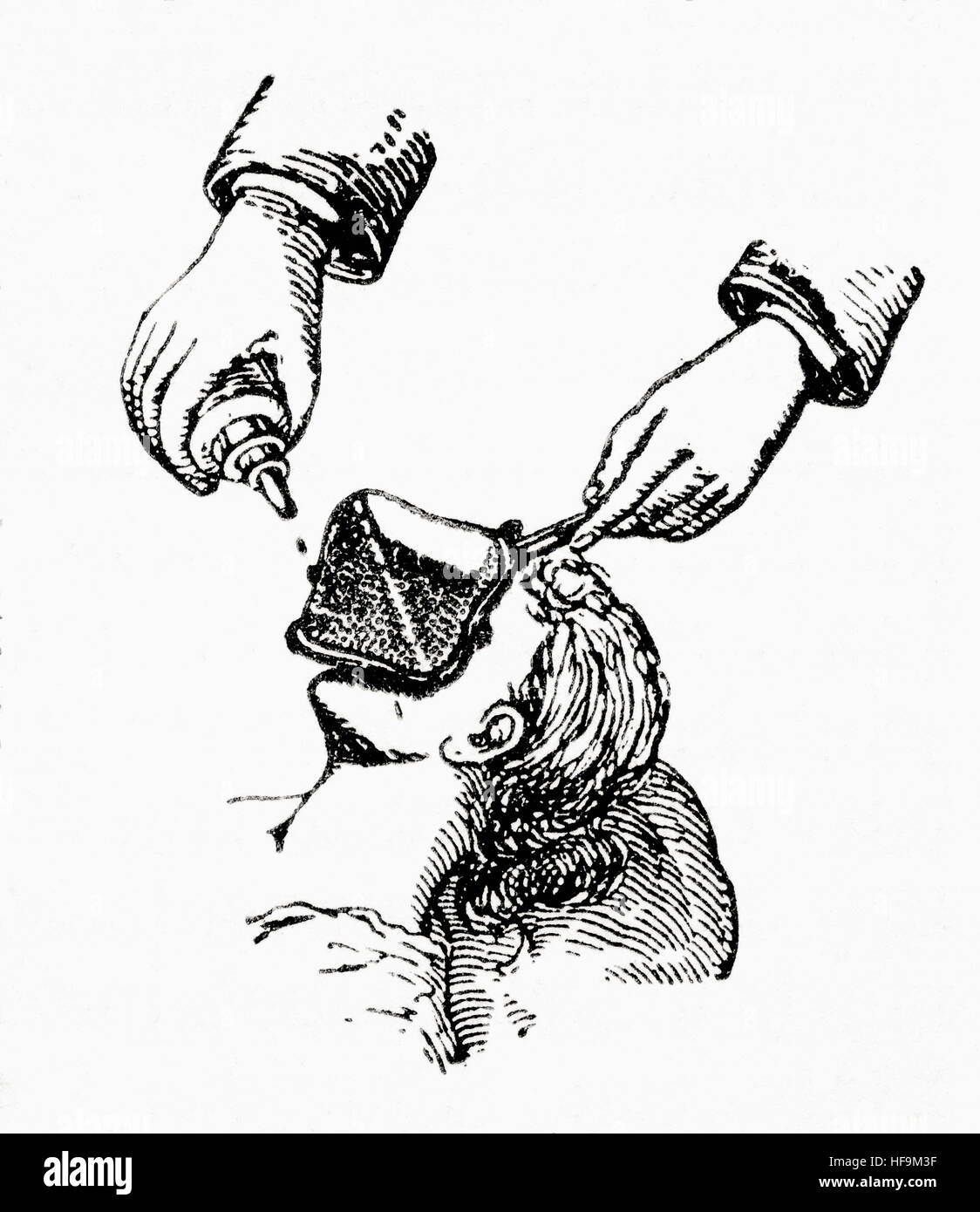 Anaesthetizing a patient in the late 19th century by dripping chloroform onto a mask placed over the face.  From - Stock Image