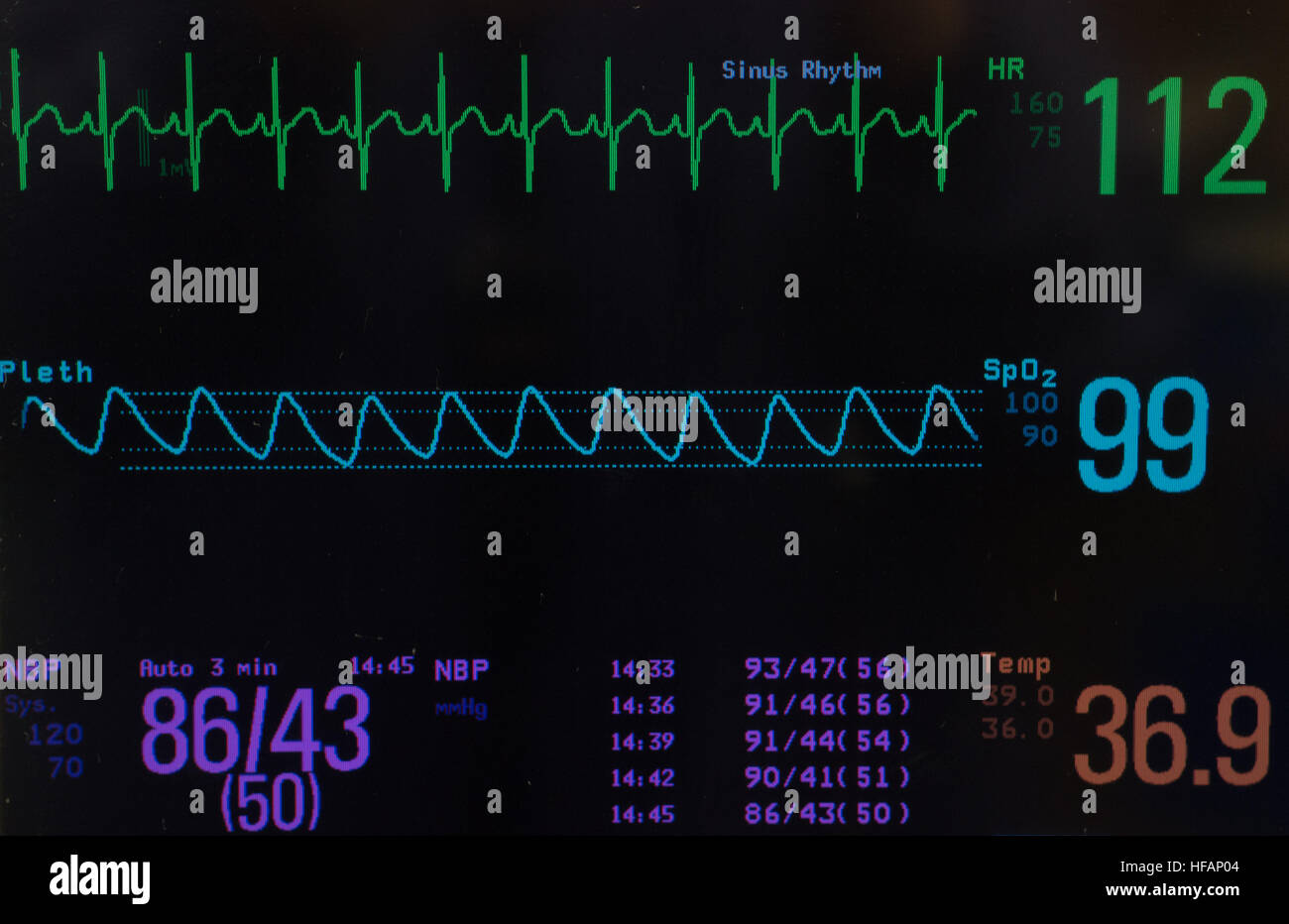 Monitor with ECG of pediatric heart rhythm, oxygen saturation, blood pressure and temperature against black background. - Stock Image