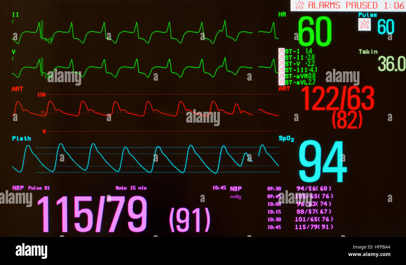 Monitor showing ECG with paced heart rhythm, arterial blood pressure, oxygen saturation and noninvasive blood pressure. - Stock Image