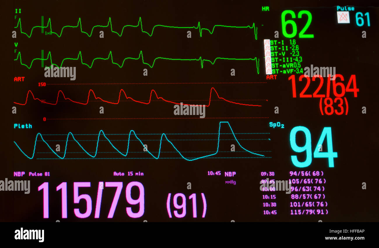 Monitor with paced heart rhythm to sinus bradycardia, arterial blood pressure, oxygen saturation and noninvasive - Stock Image
