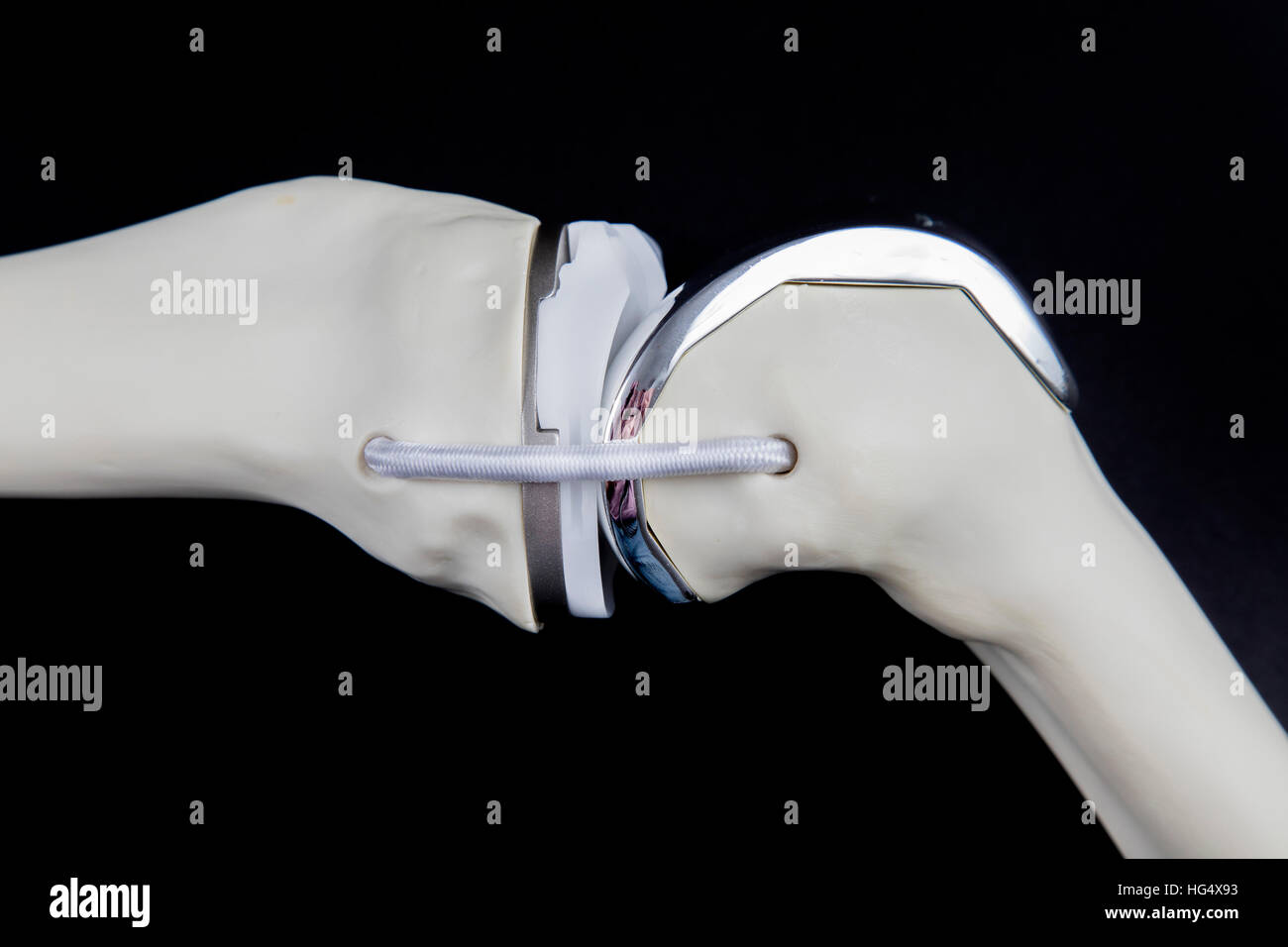 Knee prosthesis, knee endoprosthesis or knee joint prosthesis, on a bone model, artificial knee joint, - Stock Image