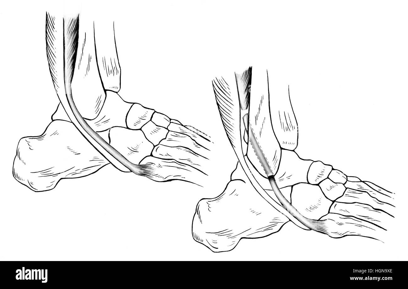A sprained (right) and normal (left) ankle. A torn peroneus brevis tendon is shown pulled forward from its normal - Stock Image