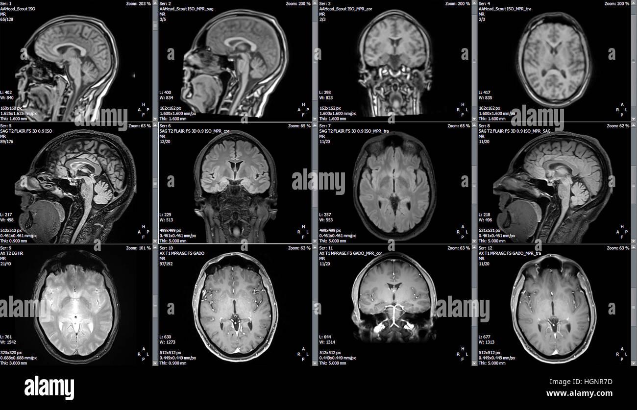 Magnetic resonance image (MRI) of a brain - Stock Image