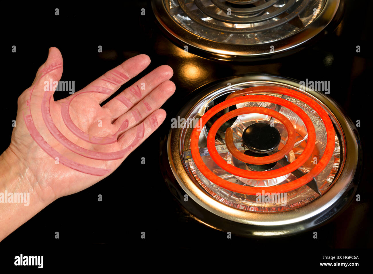 A scarred hand shows the danger of stove-top burners. - Stock Image