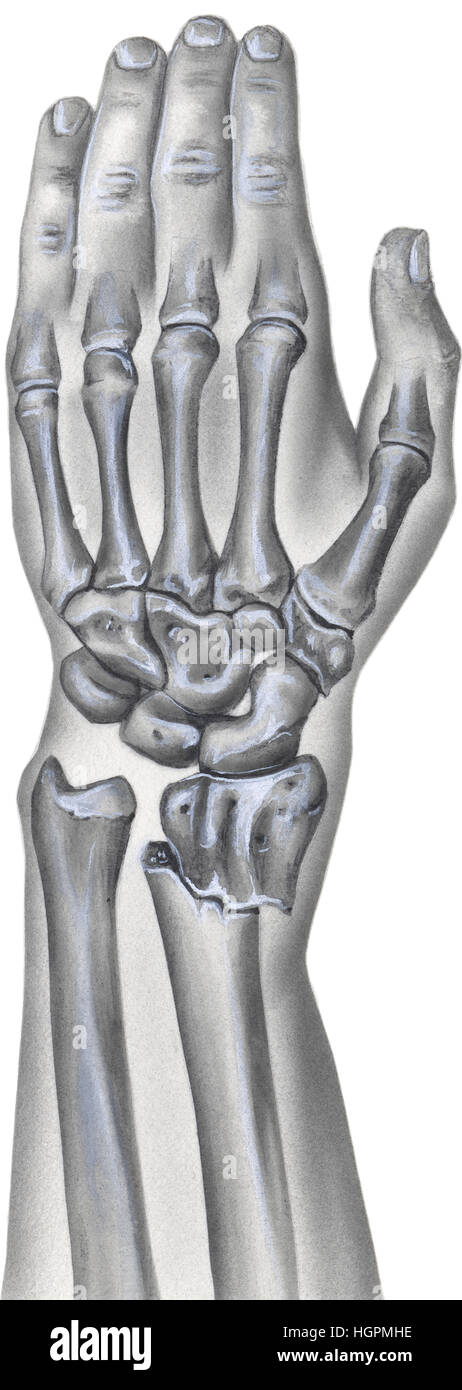 Shown is a hand, wrist and forearm with a broken radius bone. - Stock Image