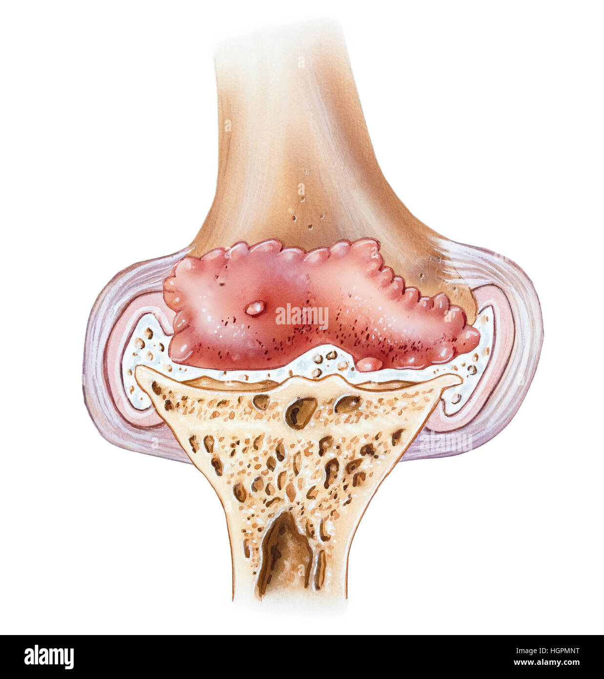 Lateral Capsular Ligament Stock Photos & Lateral Capsular Ligament ...