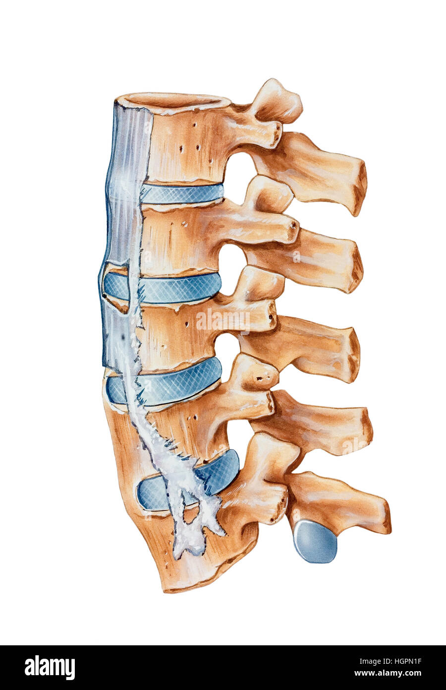 Spine - Ankylosing Spondylitis a condition with the symptoms of lower back pain and stiffness that predominantly - Stock Image