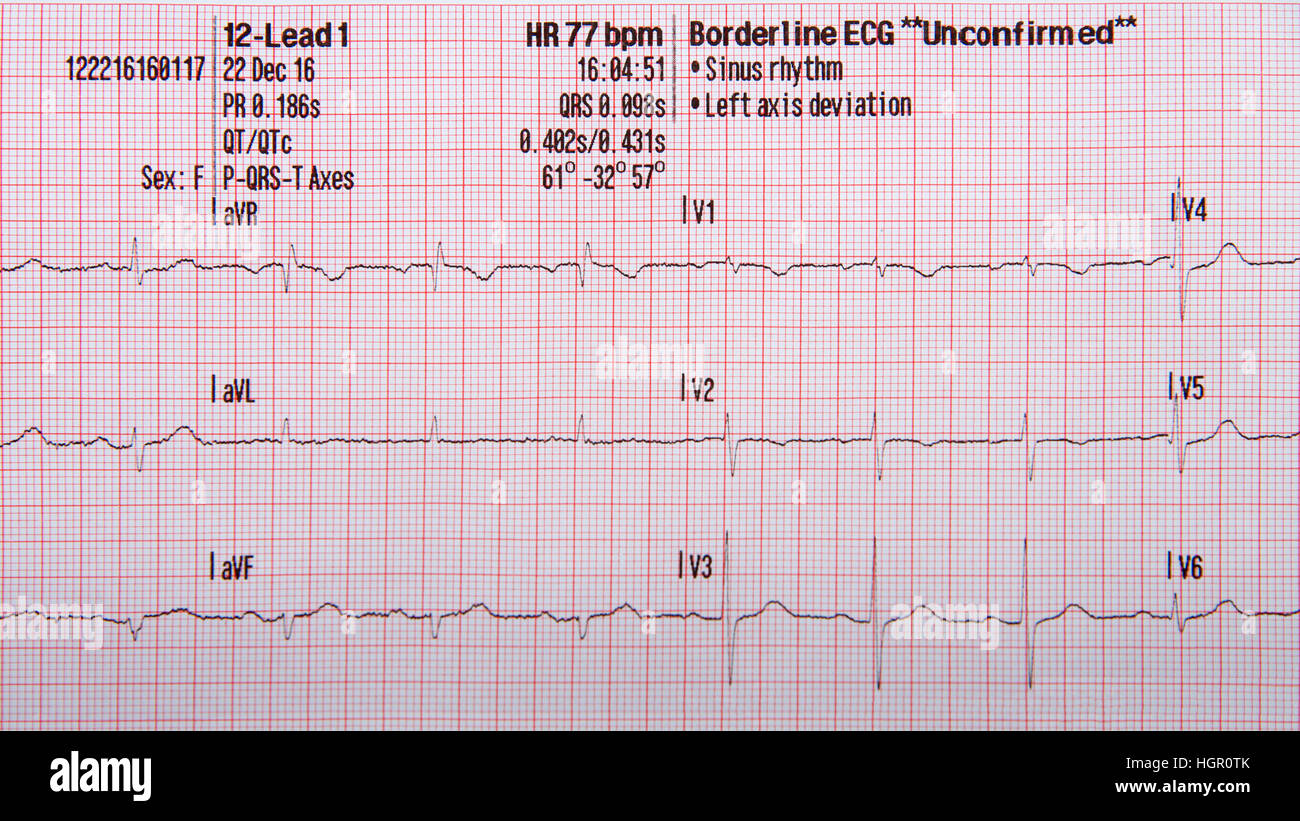 12 lead ekg strip showing normal sinus rhythm with grid paper vector art graph paper vector free download