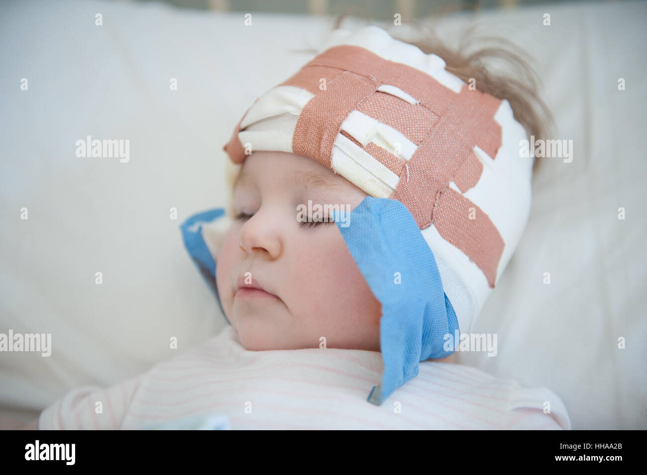 A baby girl lying asleep in a hospital bed with her head bandaged after a cochlear implant operation - Stock Image