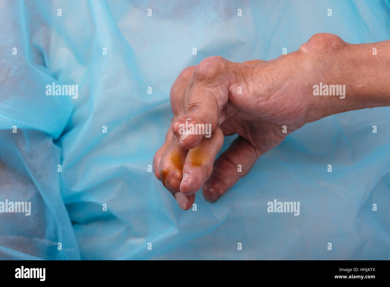 A man with a diagnosis of polyarthritis (severe stage) . The local clinic diagnosed inability to treat the disease - Stock Image