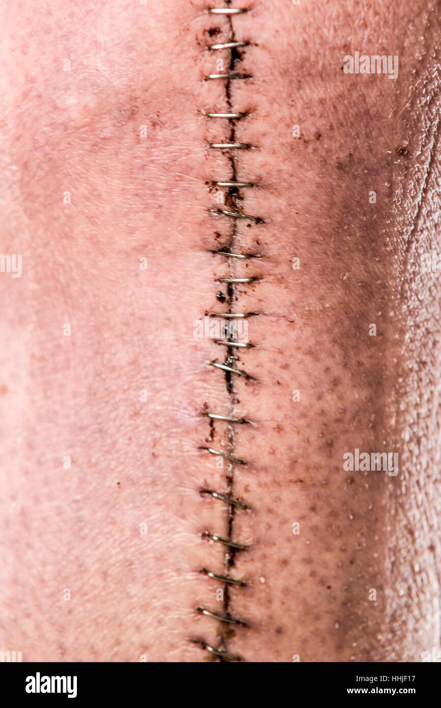 Close up of large post knee surgery incision held together with staples  Model Release: Yes.  Property Release: - Stock Image