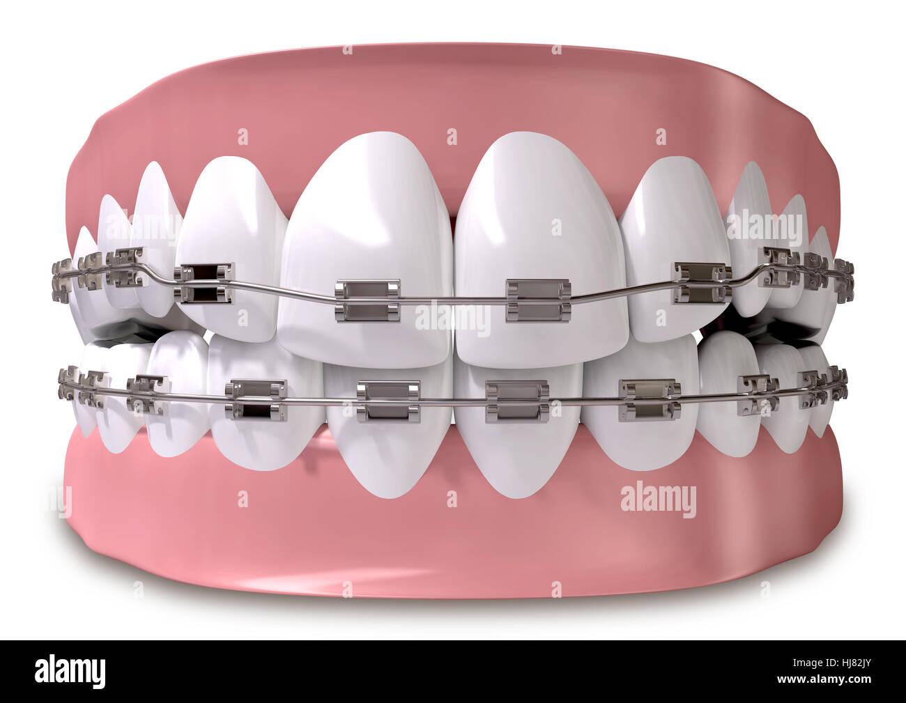 Den Ist Teeth For Wire - WIRE Center •