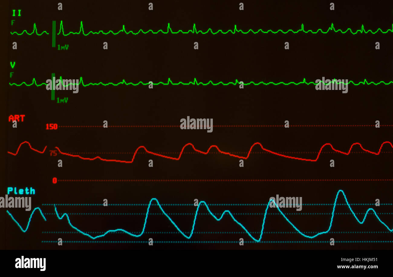 Monitor with black screen showing EKG with atrial flutter on green lines, arterial blood pressure on red line and - Stock Image