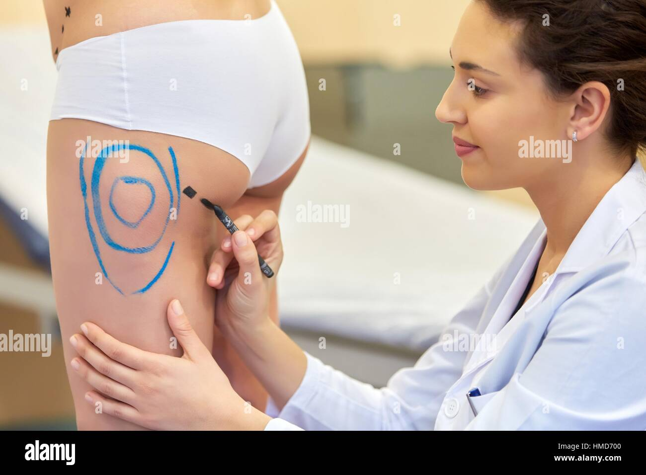 Liposuction. Liposculpture. It consists of aspiration cannulae of body fat deposits established. Before surgery - Stock Image