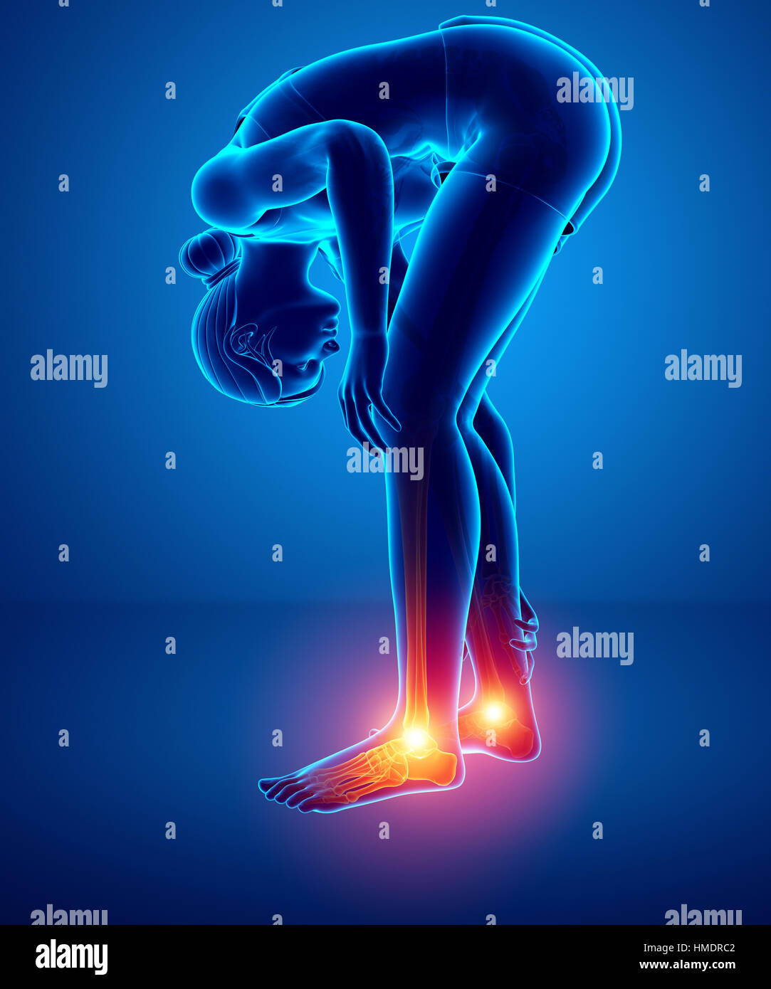 Club Foot Anatomy Stock Photos Club Foot Anatomy Stock Images