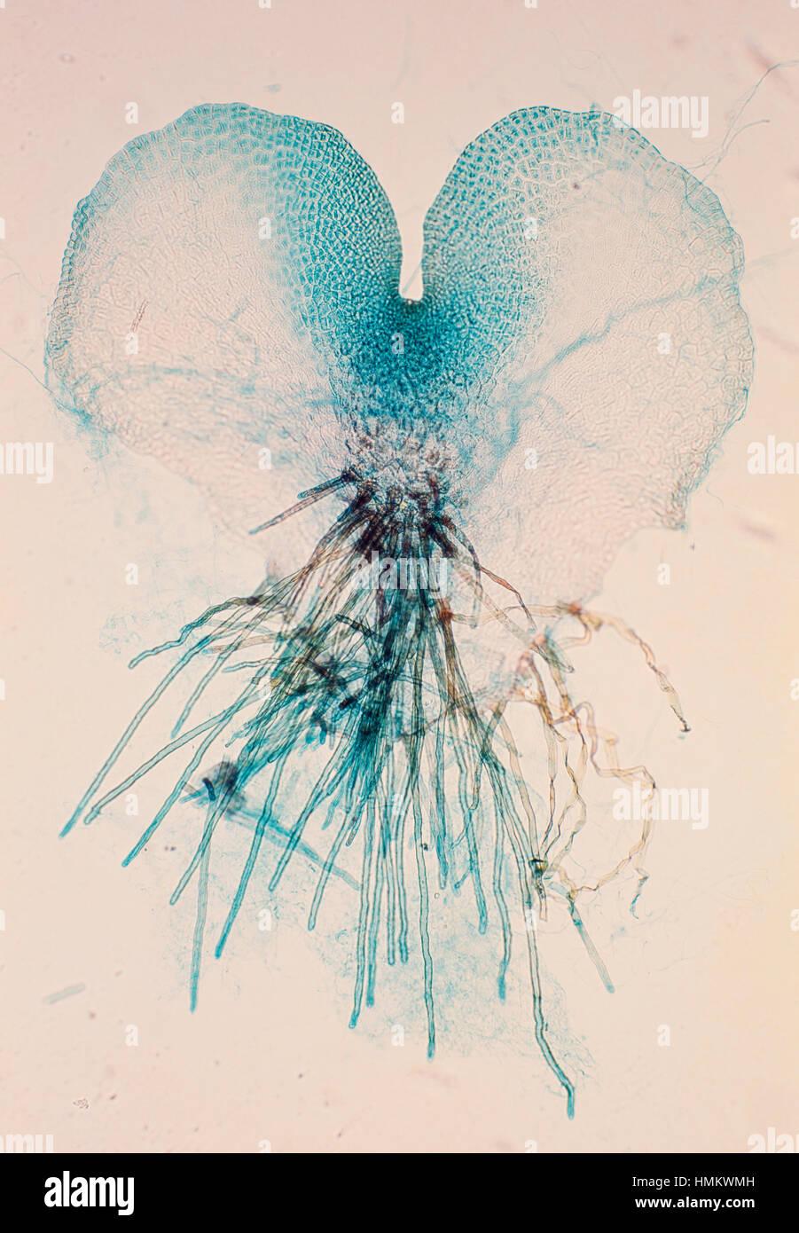 Fern prothallium (Pteridium sp), seen under a microscope. Stock Photo