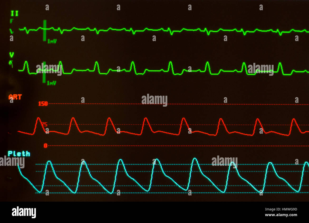 Monitor with black screen with ECG showing intraventricular conduction delay (green), arterial blood pressure (red) - Stock Image
