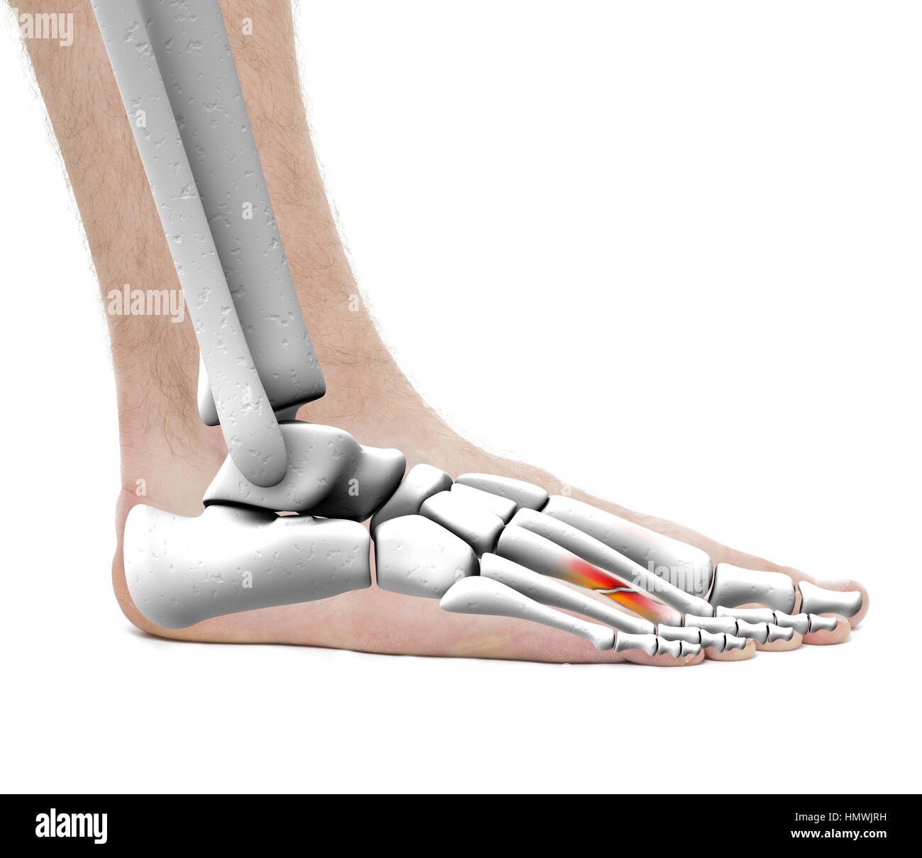 Foot Fracture Metatarsal Bone - Anatomy Male - Studio photo isolated ...