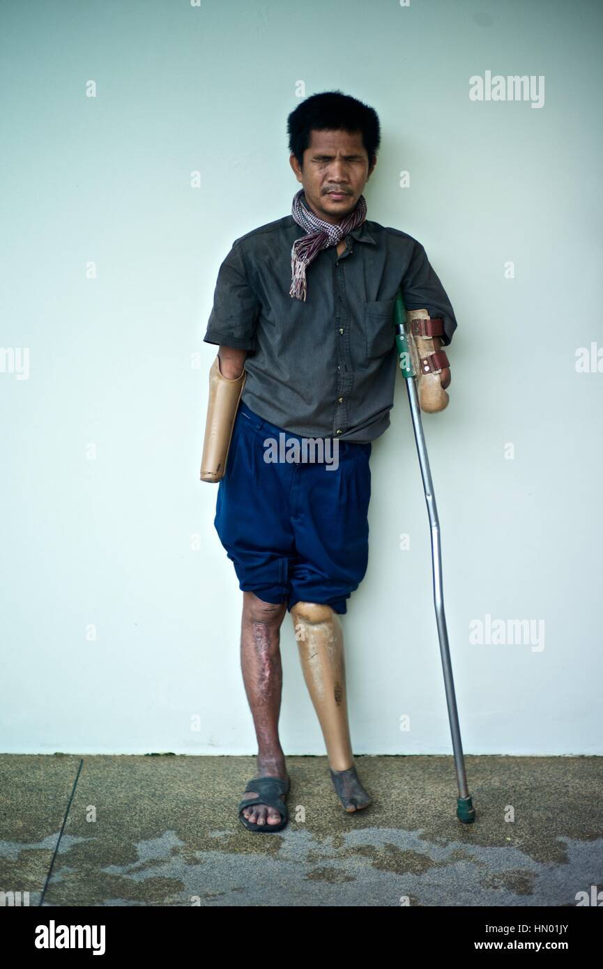 Model released portrait of a Cambodian land mine survivor, who lost Stock  Photo - Alamy