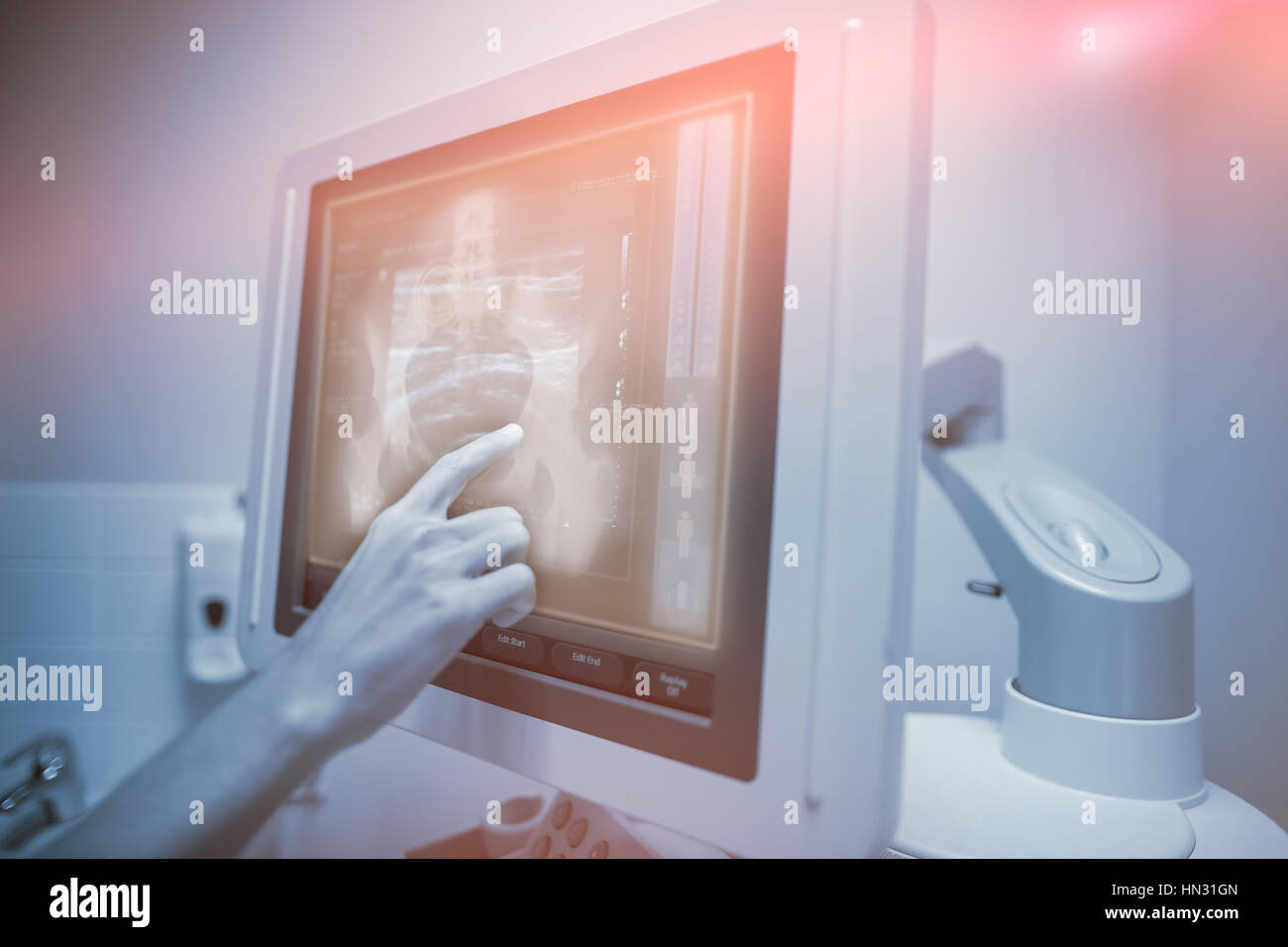 Xray of midsection of a human body against nurse pointing at ultrasonic monitor - Stock Image
