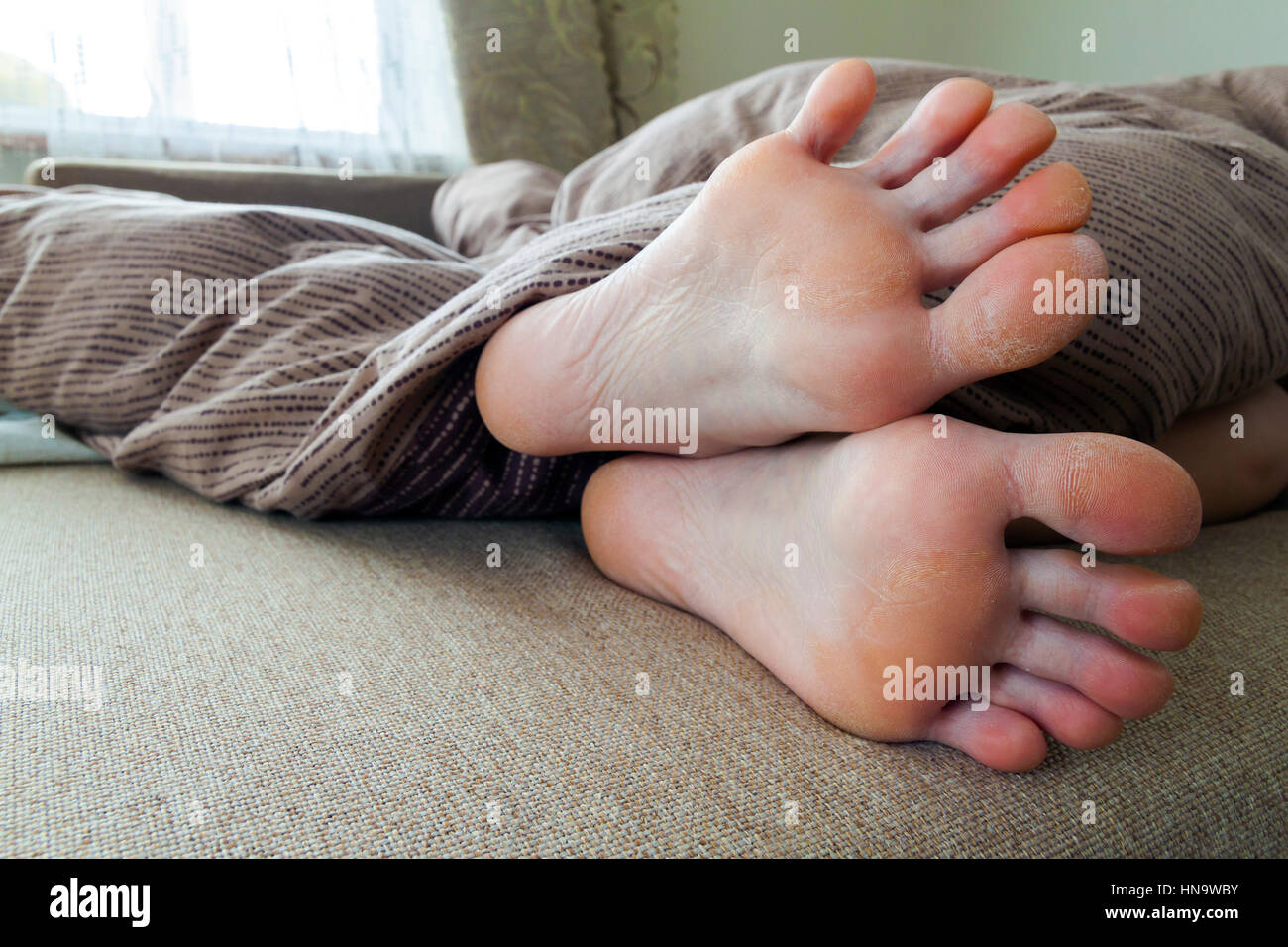 Dry cracked skin of woman feet in bed. Foot treatment Stock Photo ...