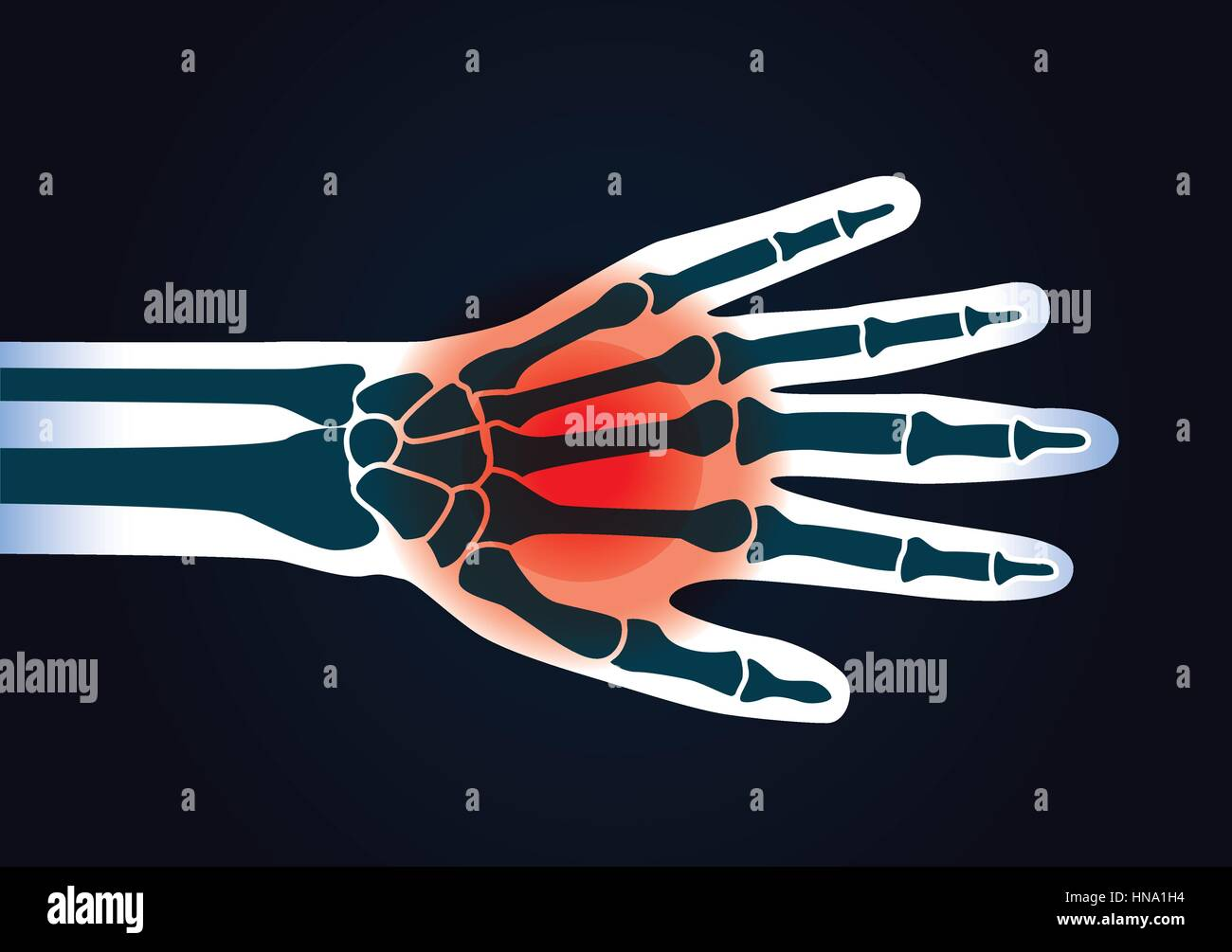 Human hand bone have a red signal. This illustration about foot pain. - Stock Vector