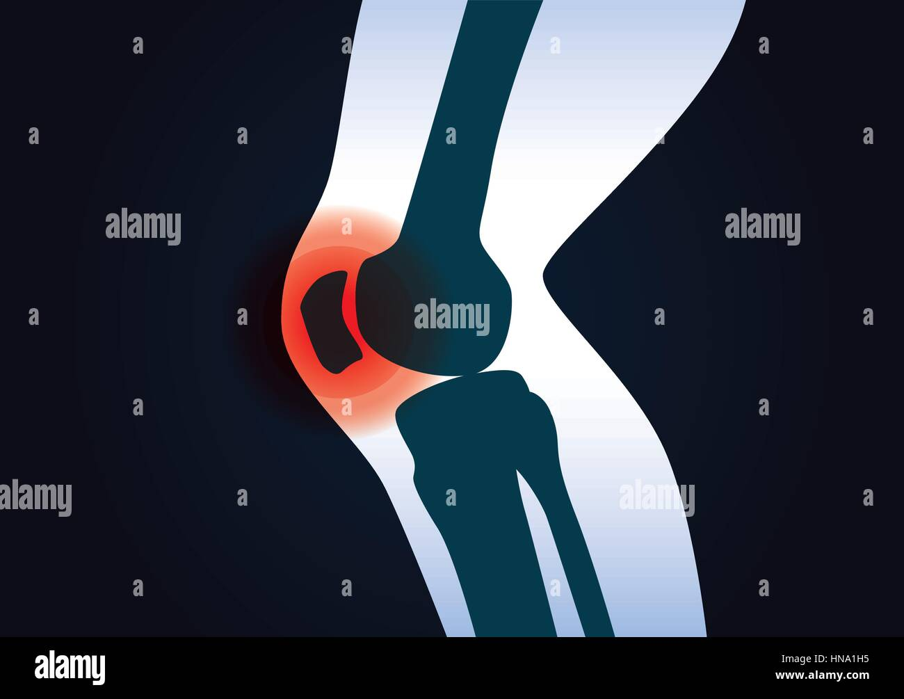 Red signal at knee area. This illustration about human leg injury. - Stock Image