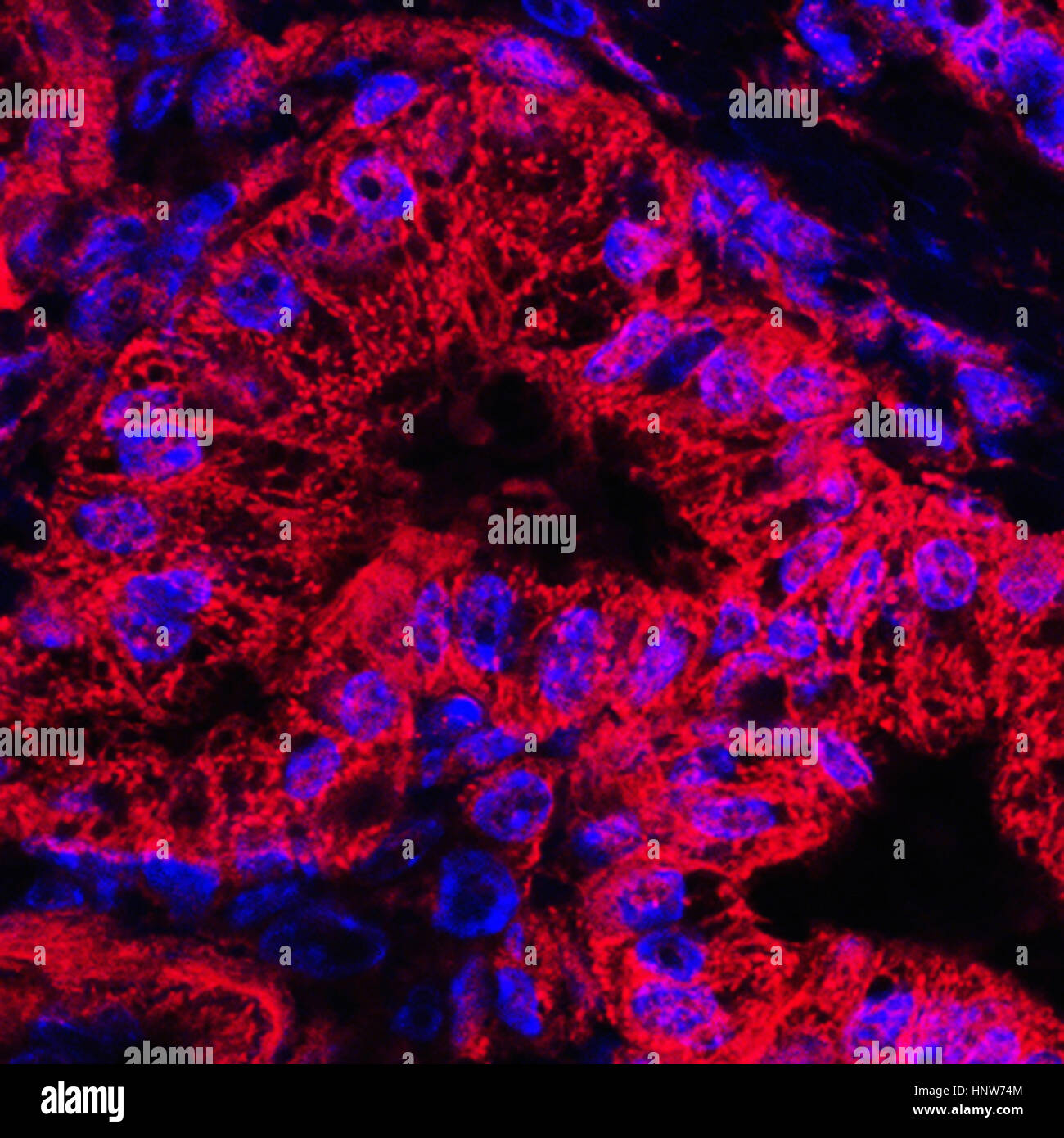 Microscopic image of mitochondrial stained pancreatic cancer cells - Stock Image