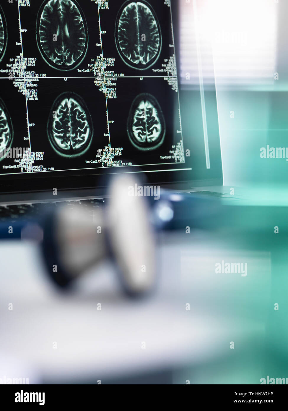 Series of MRI brain scans on computer screen with stethoscope in foreground on doctor's desk - Stock Image