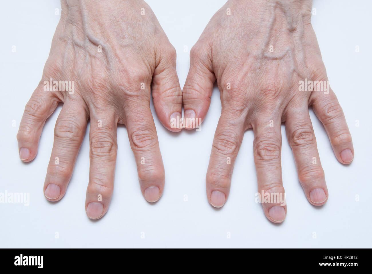 Bilateral Osteoarthritis