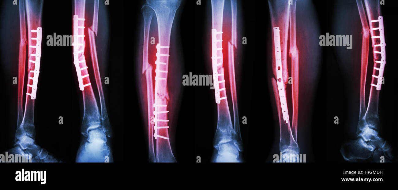 Collection image of leg fracture and surgical treatment by internal fixation with plate and screw . Break tibia - Stock Image