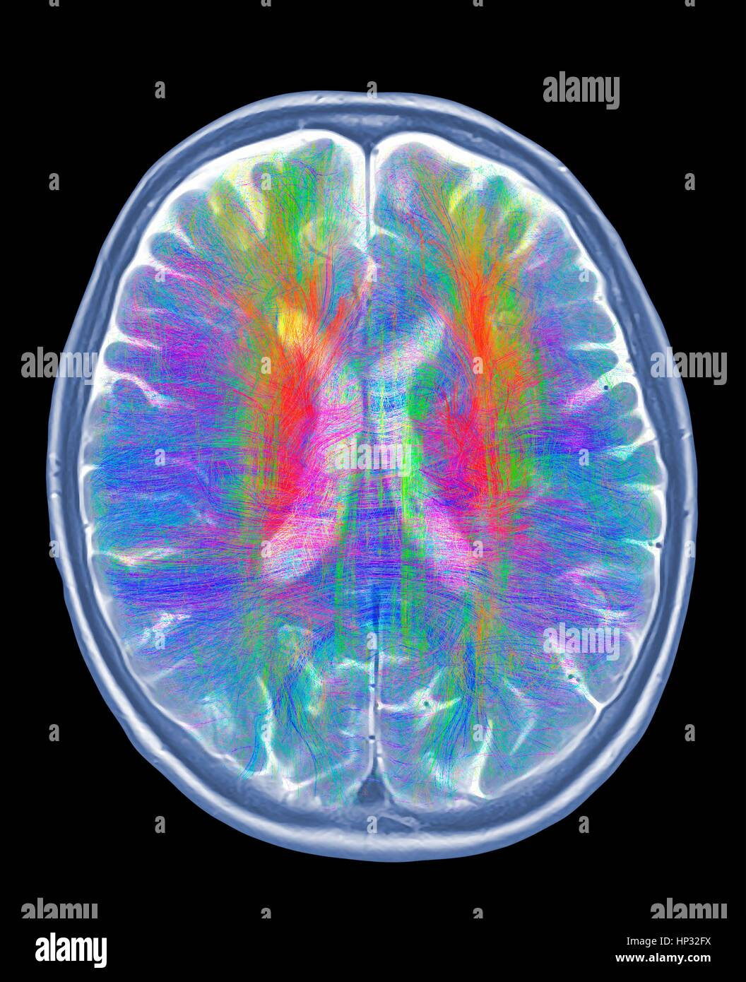 Computer artwork of MRI top view of brain showing white matter fibres.Coloured 3D diffusion spectral imaging (DSI) - Stock Image