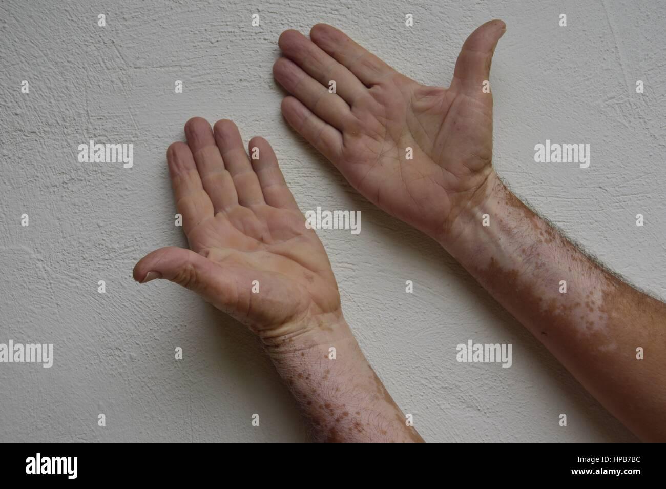 Vitiligo datiert india