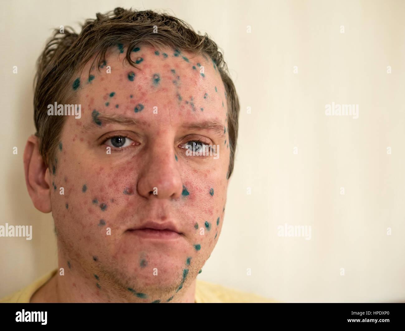 Facial rashes on adults, allison miller porno stard