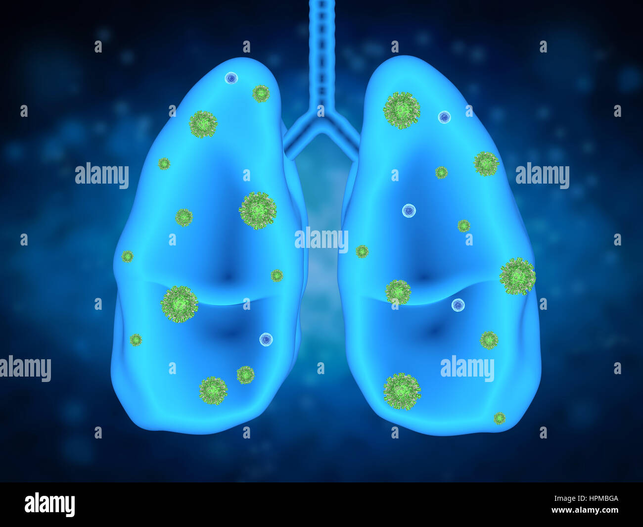 3d rendering lung disease with bacteria cells - Stock Image
