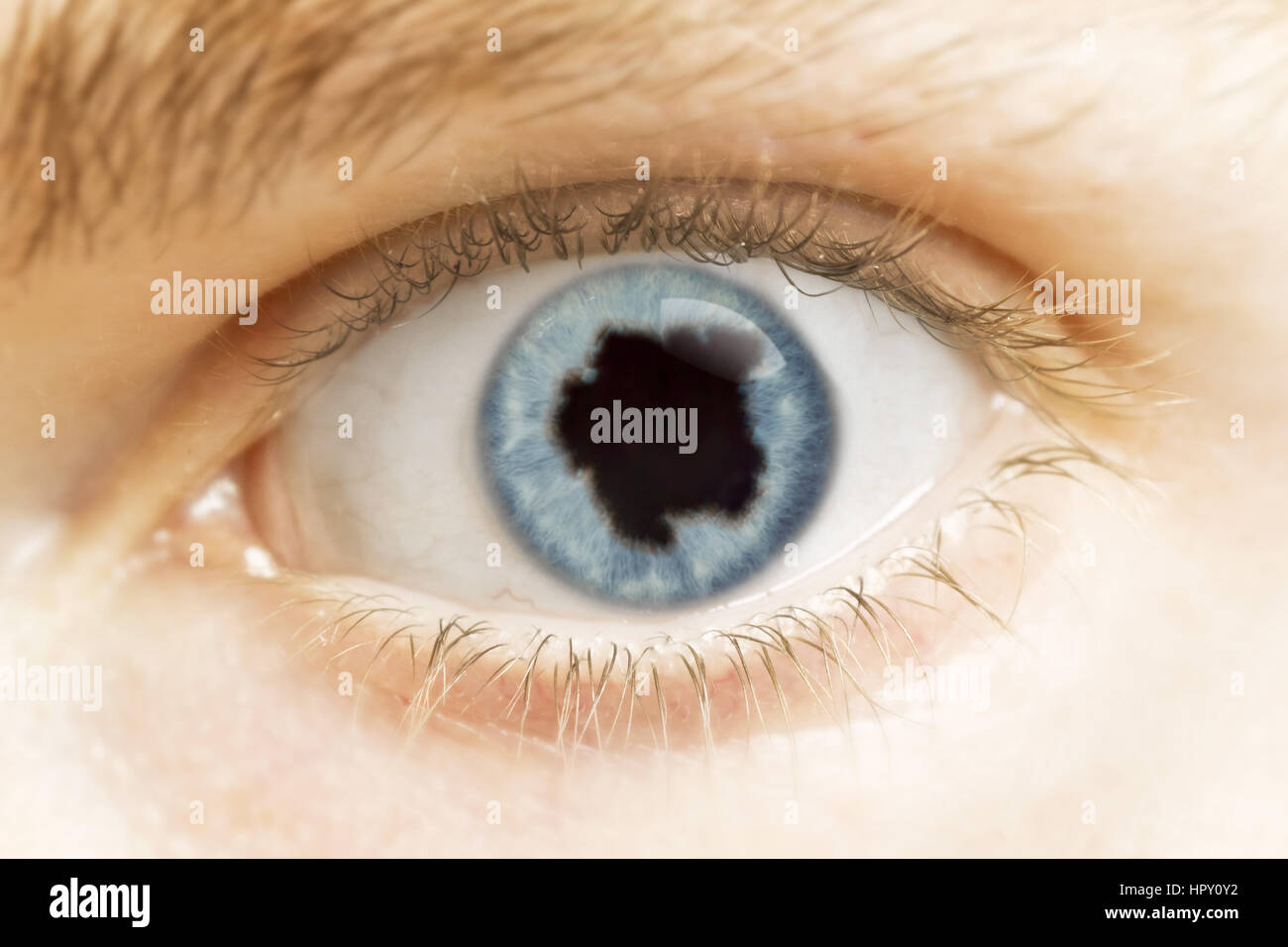 A close-up of an eye with the pupil in the shape of Suriname.(series) - Stock Image