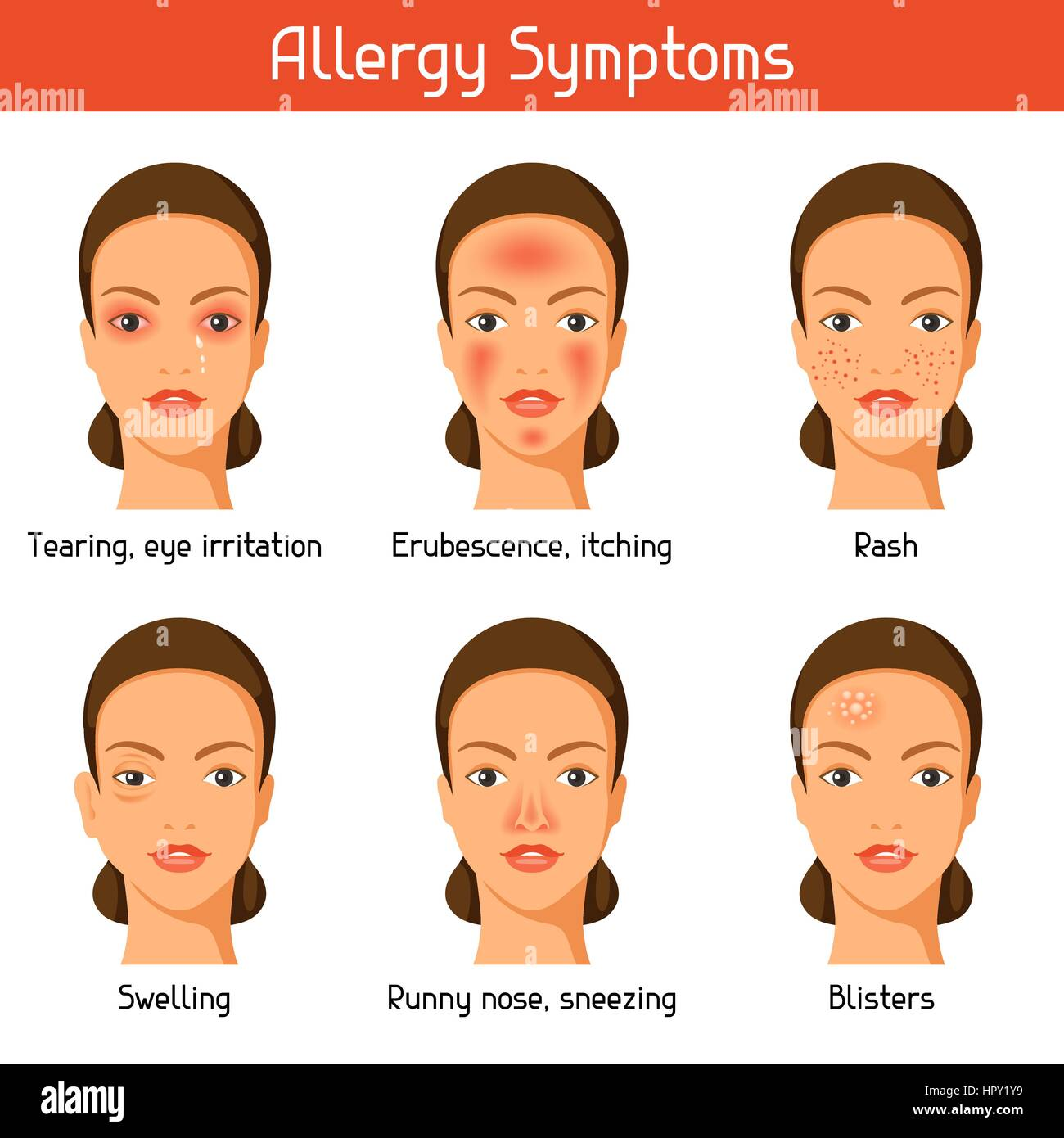 Allergy symptoms. Vector illustration for medical websites advertising medications - Stock Image