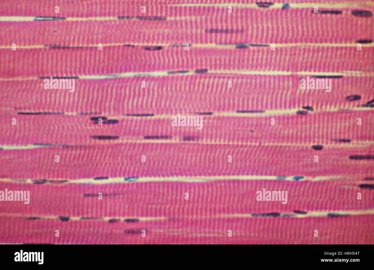Skeletal Muscle Tissue Longitudinal Section Stock Photos Skeletal