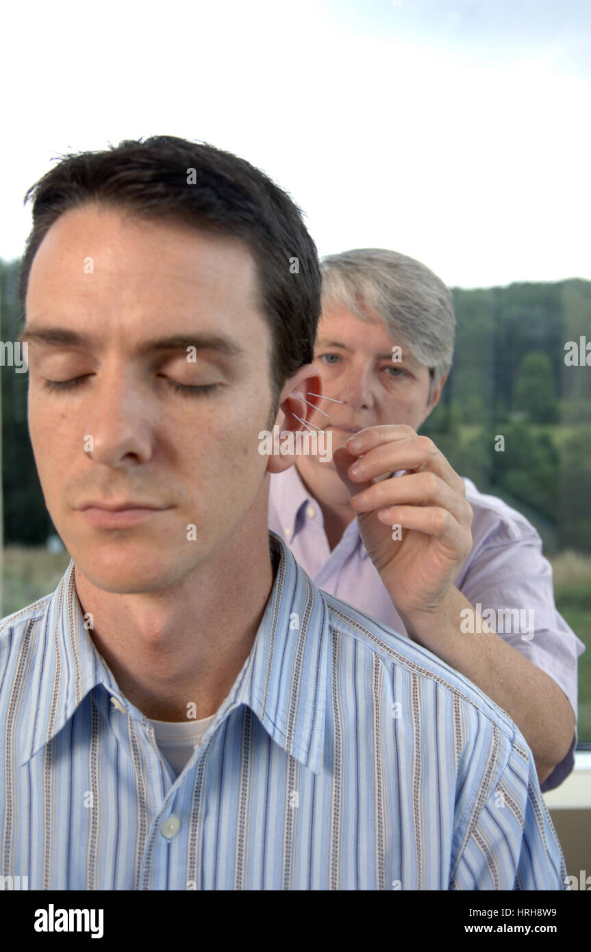 Acupuncture - Stock Image