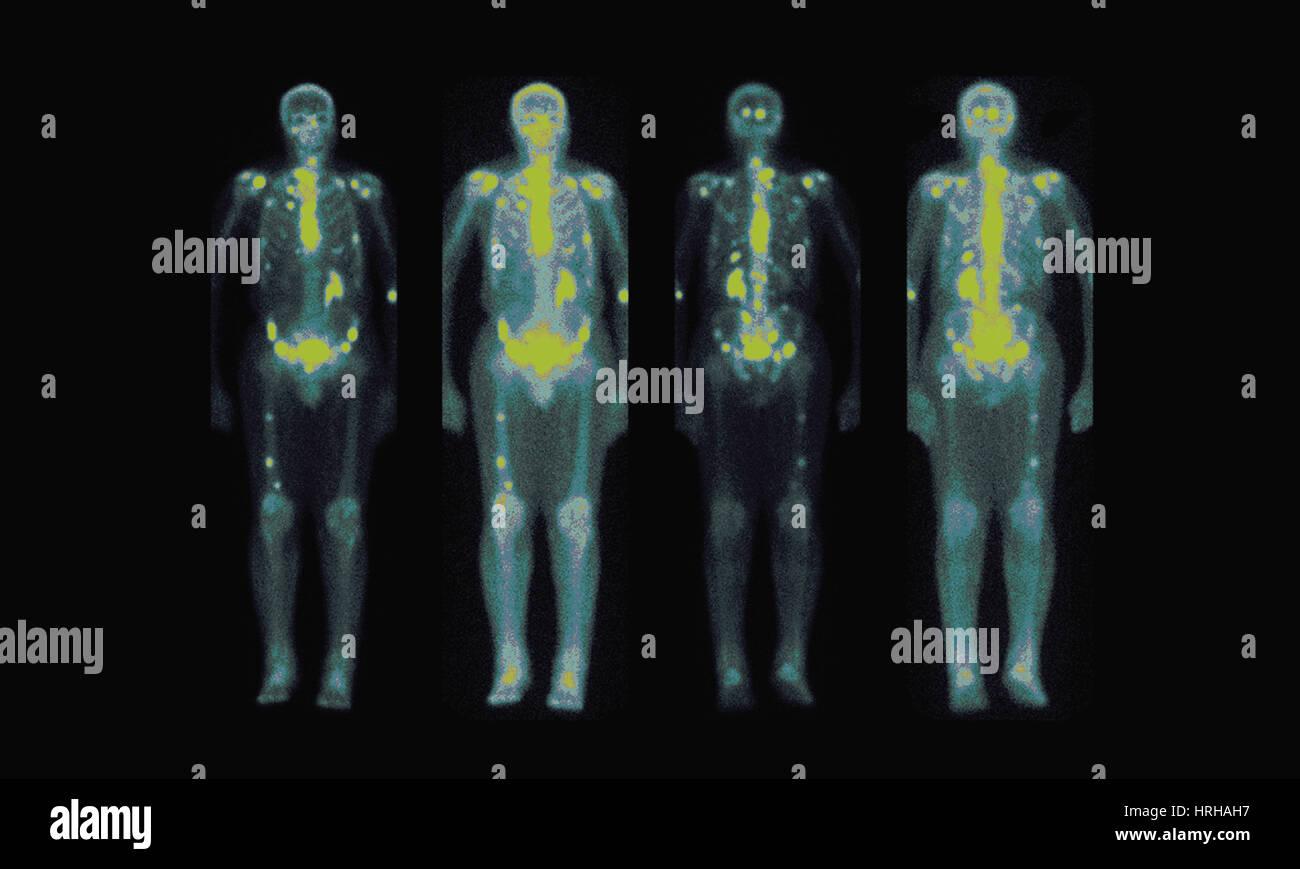 Nuclear Medicine Bone Scan Stock Photo