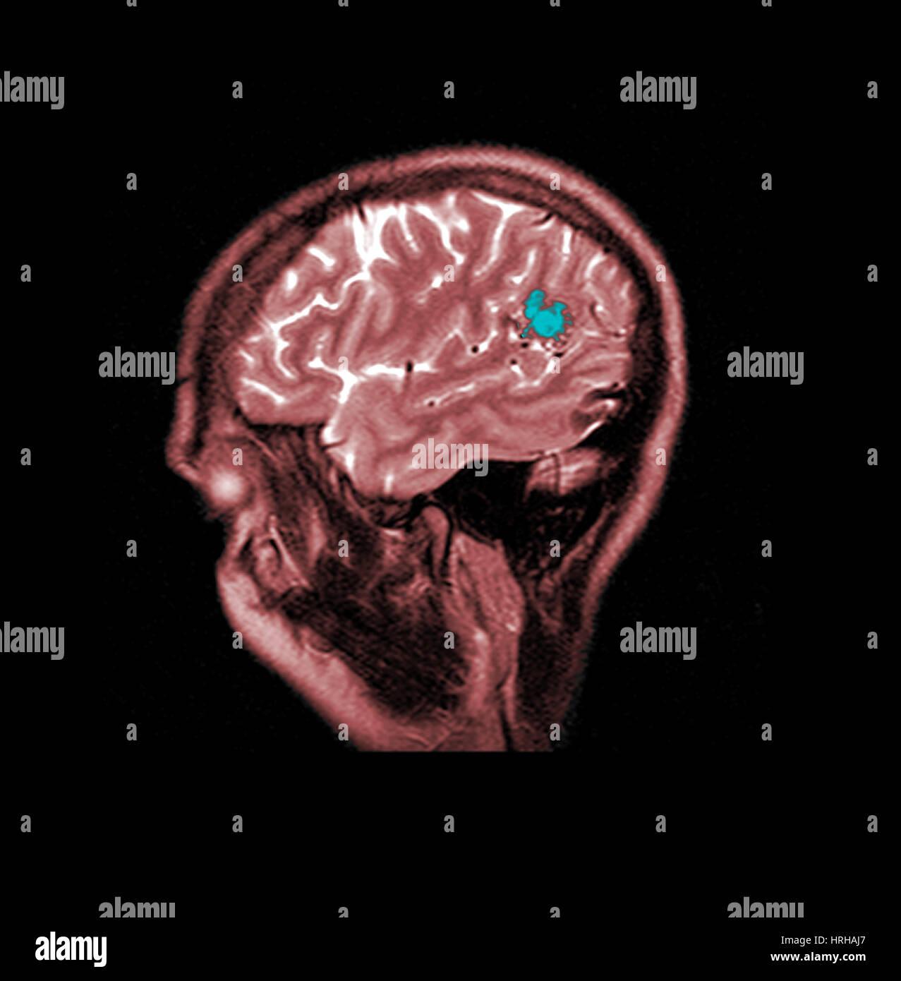Mri Cerebral Avm Stock Photos & Mri Cerebral Avm Stock Images - Alamy