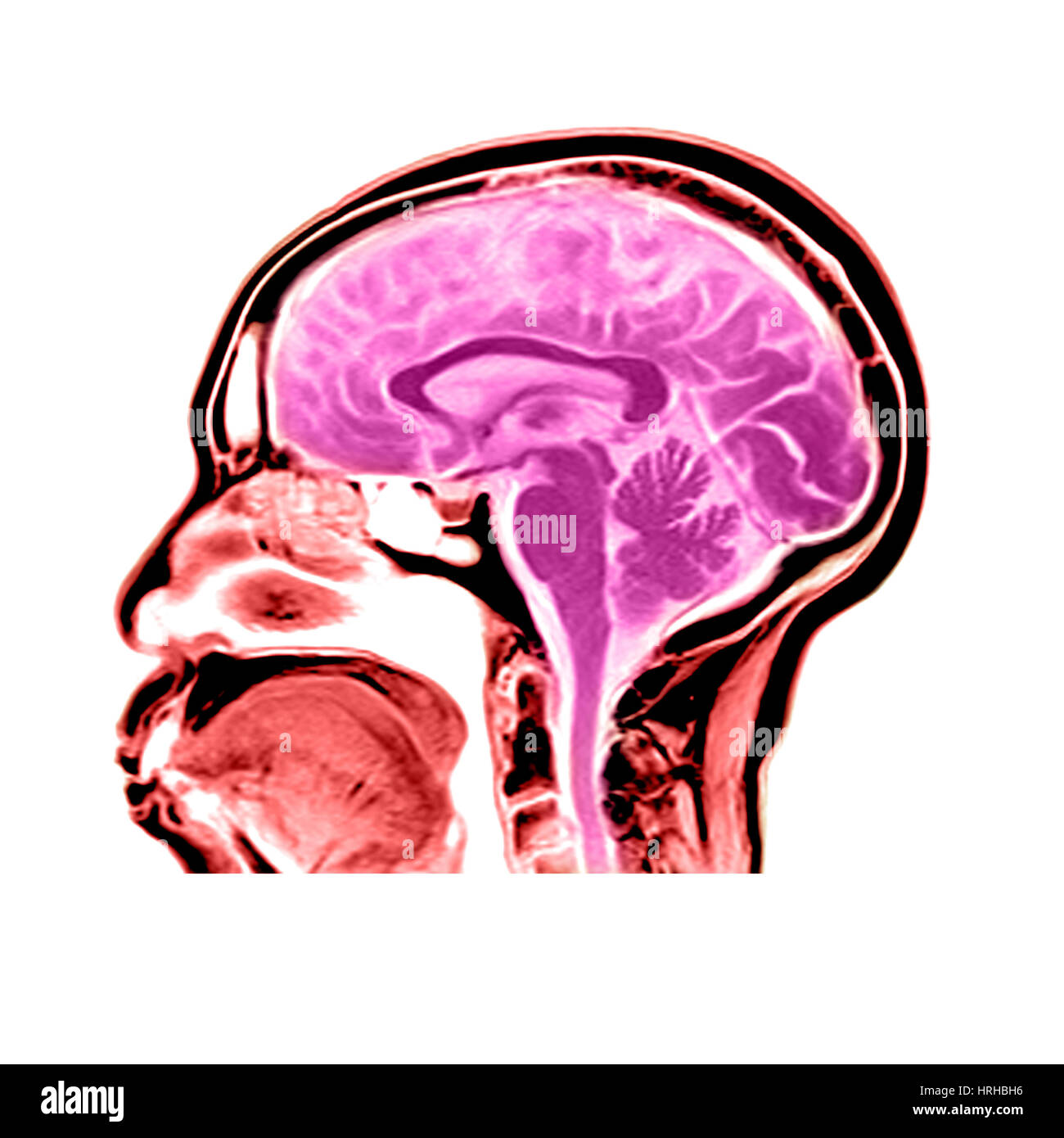 Sagittal View of an MRI of the Brain Stock Photo: 134991954 - Alamy