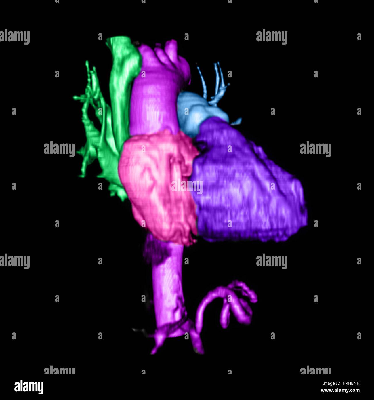 Color Enhanced 3D CTA of Heart - Stock Image