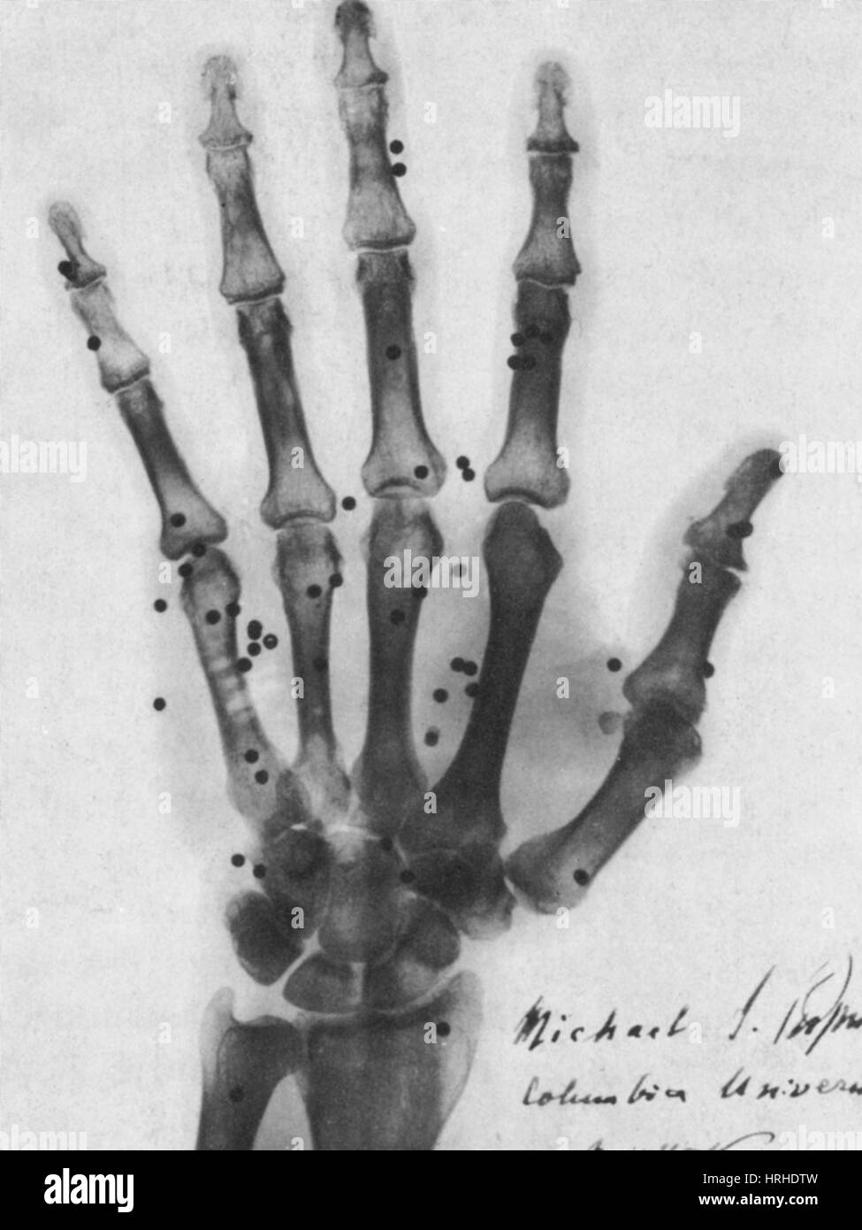 X-ray of Gunshot in the Hand, 1896 - Stock Image