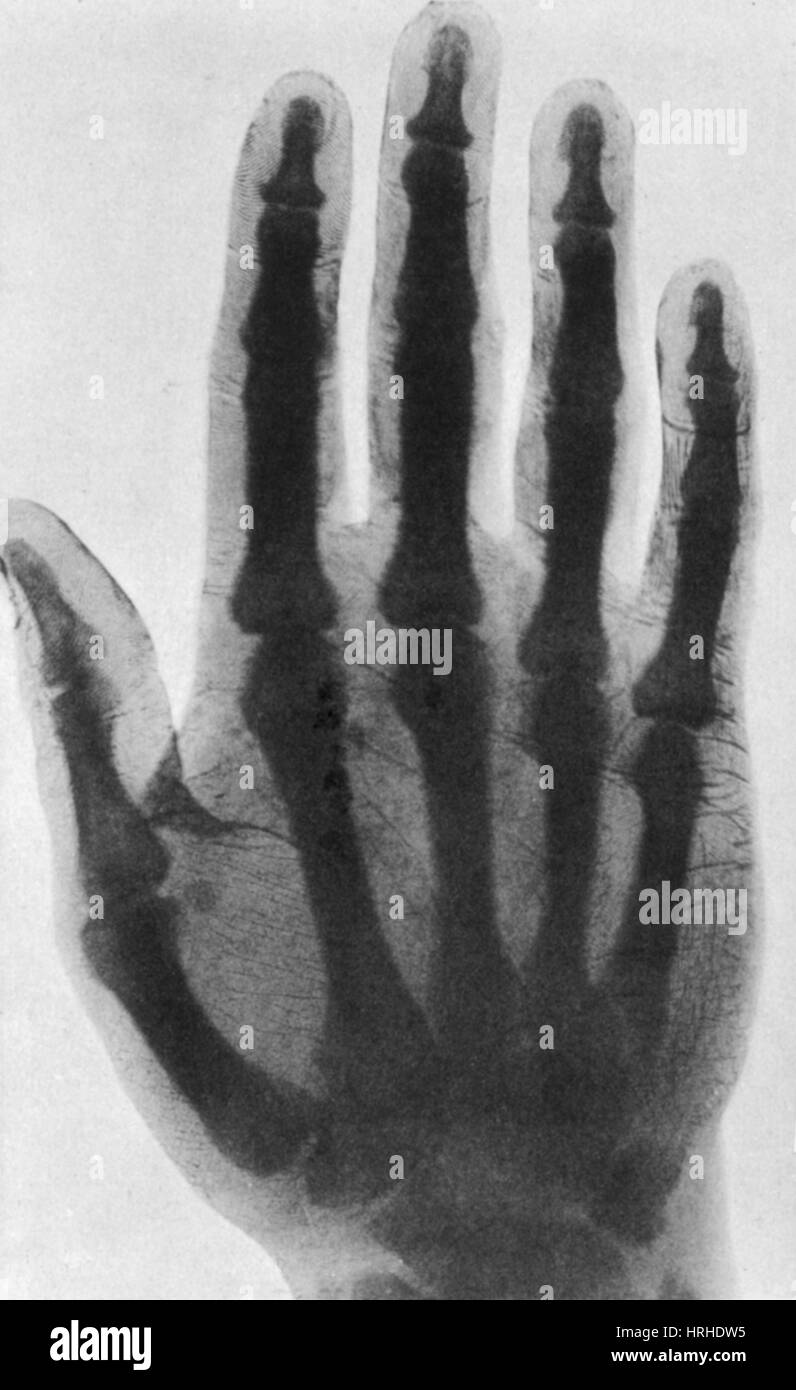 Early X-ray, 1897 - Stock Image