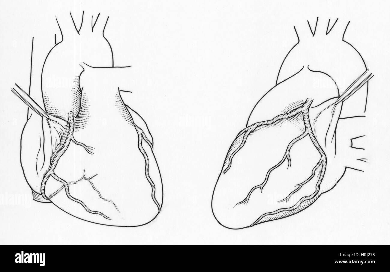 Left Circumflex Artery Stock Photos Left Circumflex Artery Stock