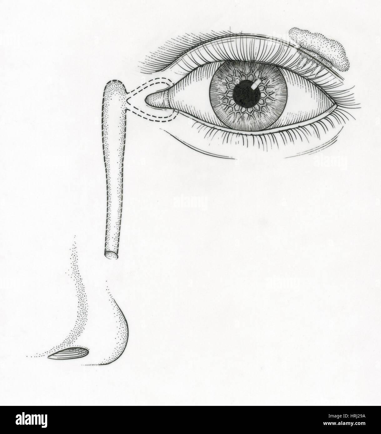 Illustration of Tear Duct Stock Photo: 135006630 - Alamy