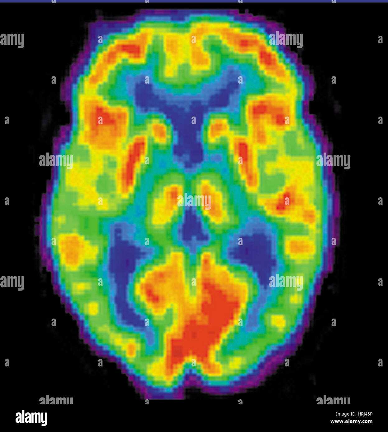 PET Scan of 20 Year Old Brain, 1 of 2 - Stock Image
