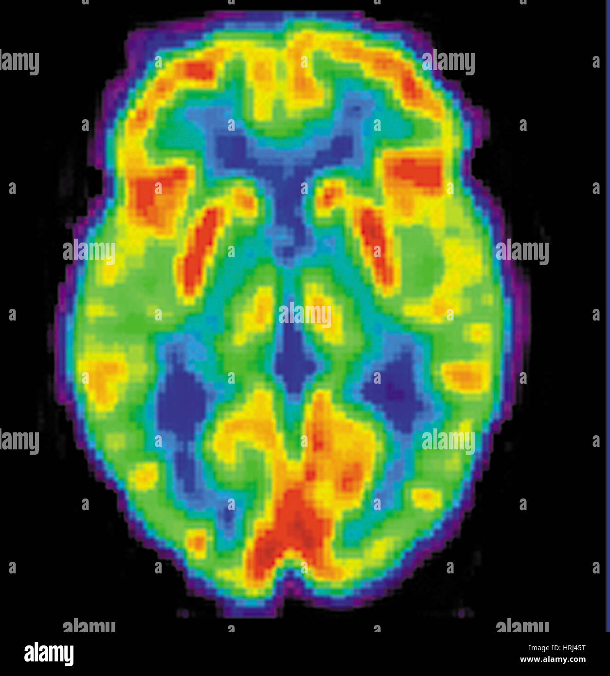 PET Scan of 80 Year Old Brain, 2 of 2 - Stock Image